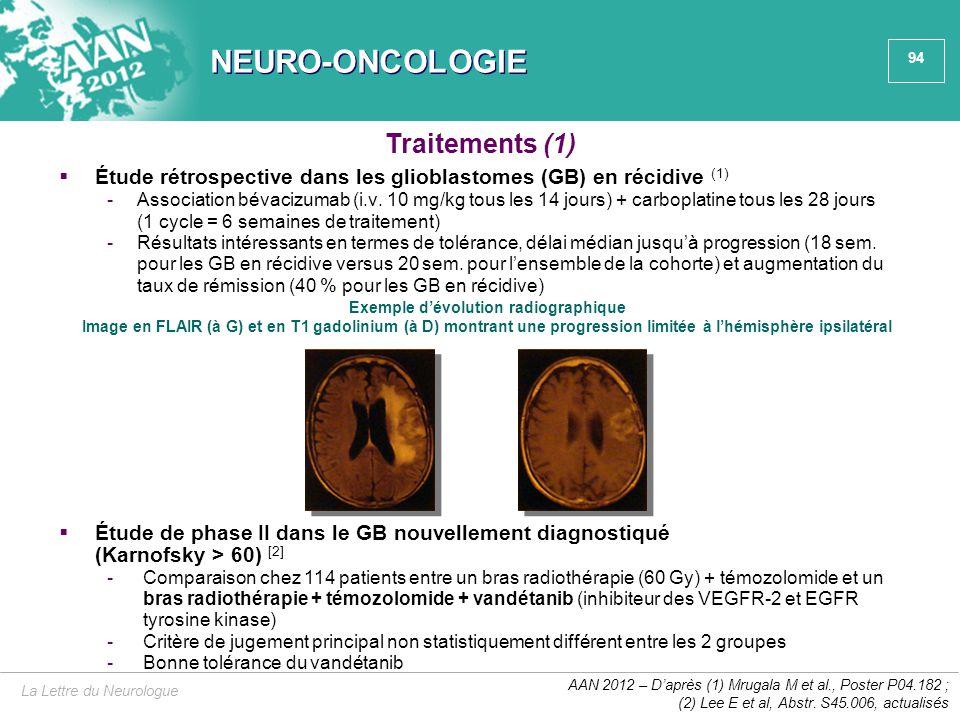 NEURO-ONCOLOGIE Traitements (1)