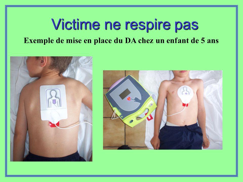 Exemple de mise en place du DA chez un enfant de 5 ans