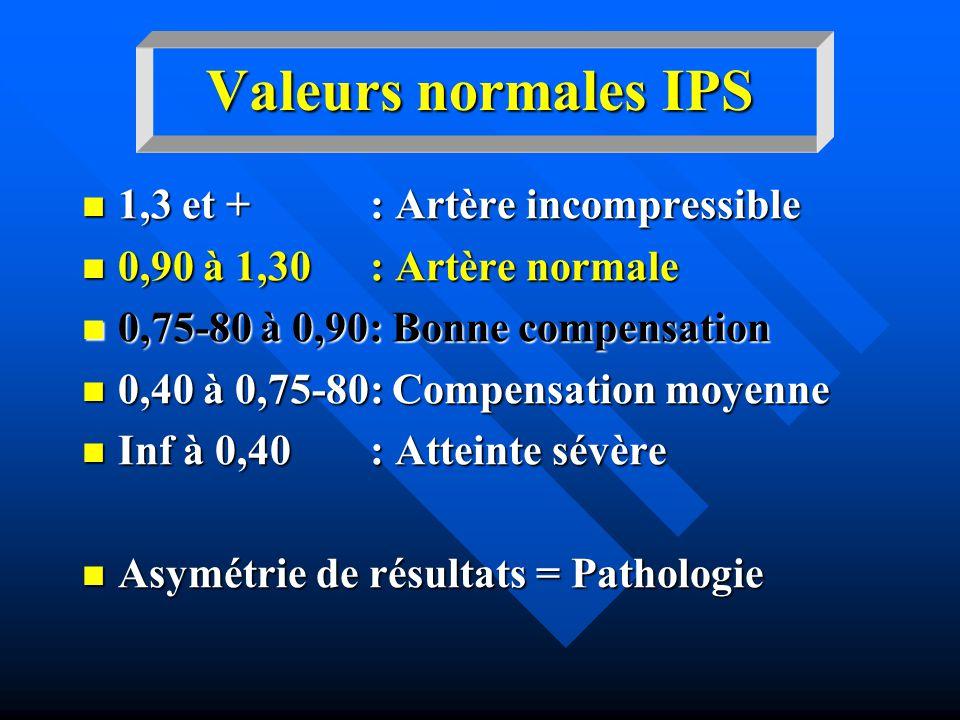 Valeurs normales IPS 1,3 et + : Artère incompressible