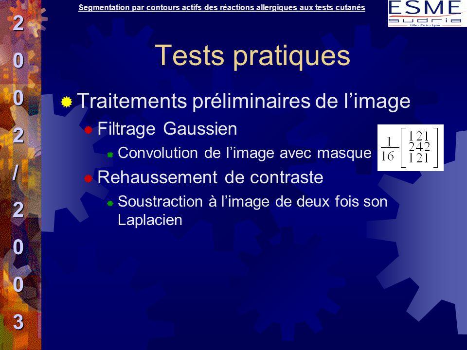 Tests pratiques 2 / Traitements préliminaires de l'image 3