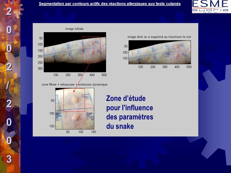 2 / 3 Zone d'étude pour l'influence des paramètres du snake