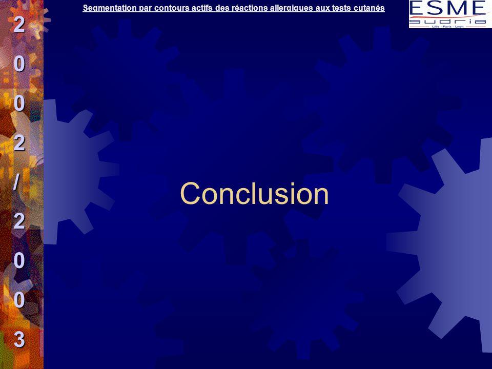 Segmentation par contours actifs des réactions allergiques aux tests cutanés