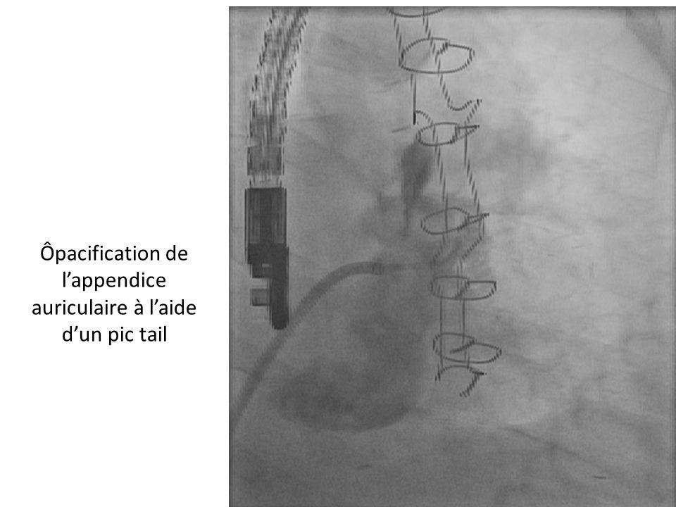 Ôpacification de l'appendice auriculaire à l'aide d'un pic tail