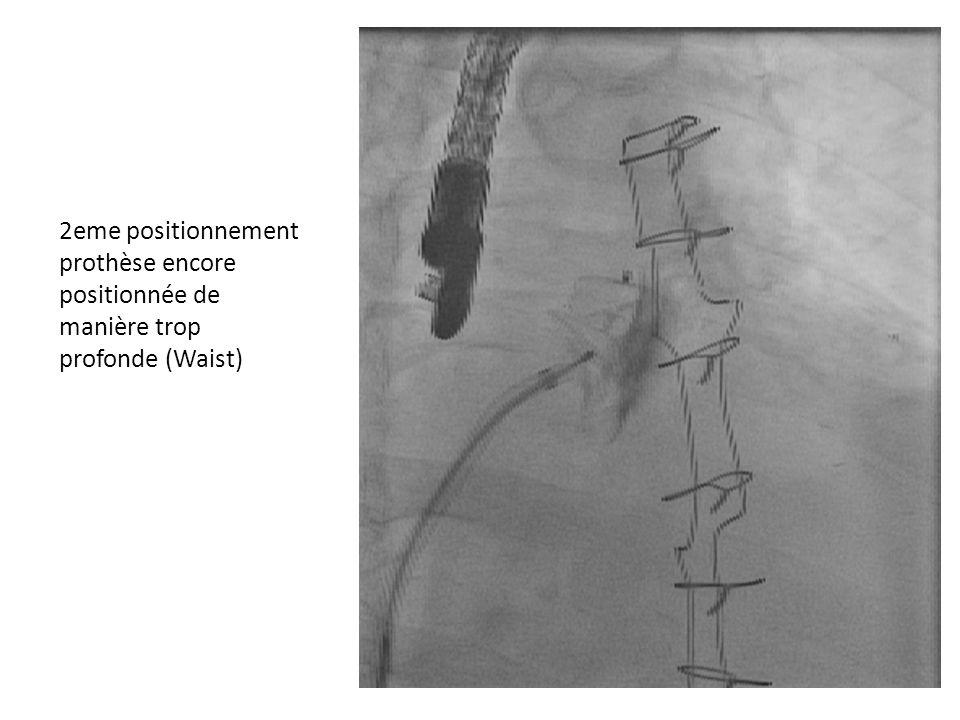 2eme positionnement prothèse encore positionnée de manière trop profonde (Waist)