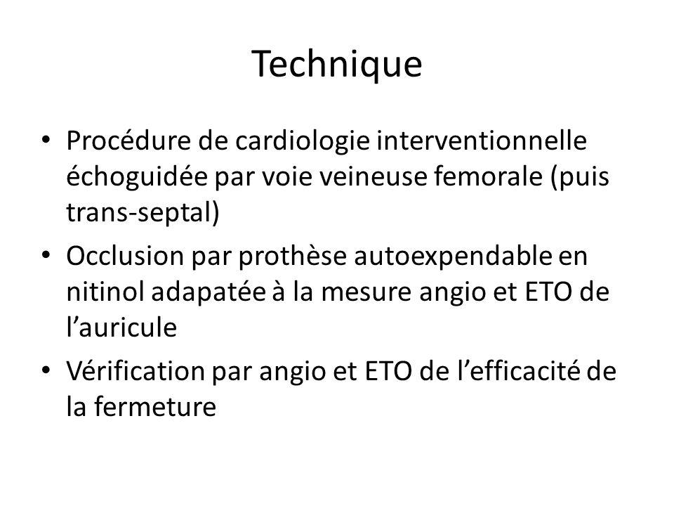 Technique Procédure de cardiologie interventionnelle échoguidée par voie veineuse femorale (puis trans-septal)