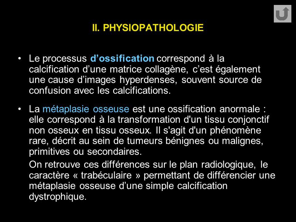 II. PHYSIOPATHOLOGIE