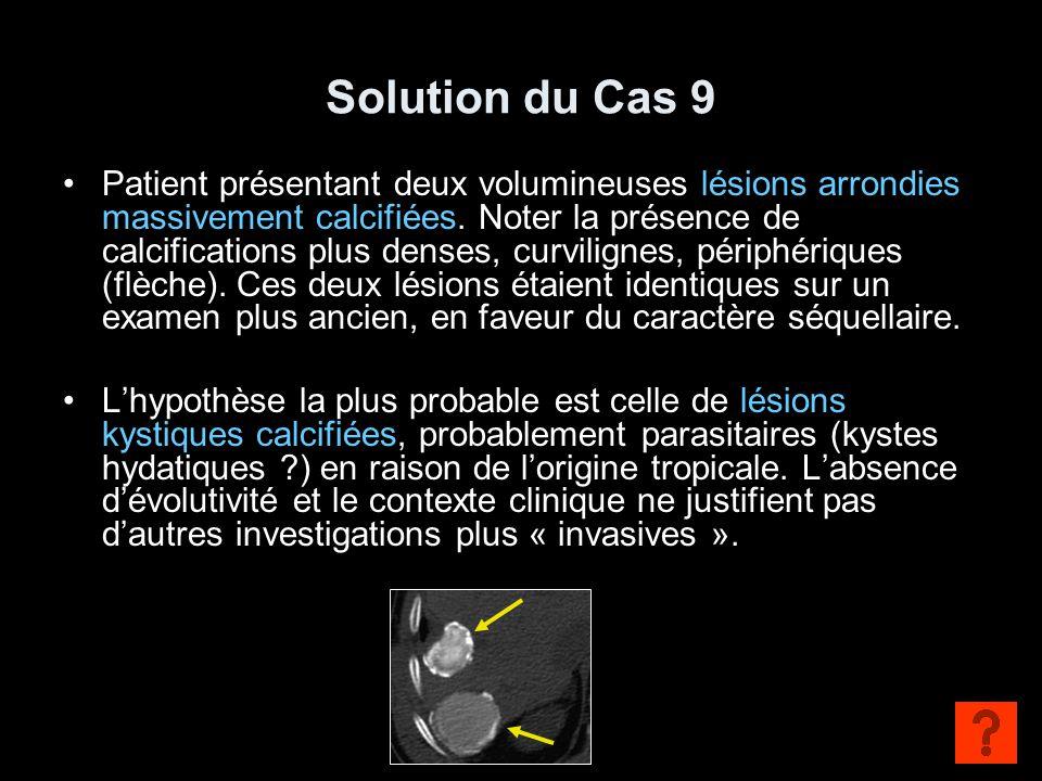 Solution du Cas 9