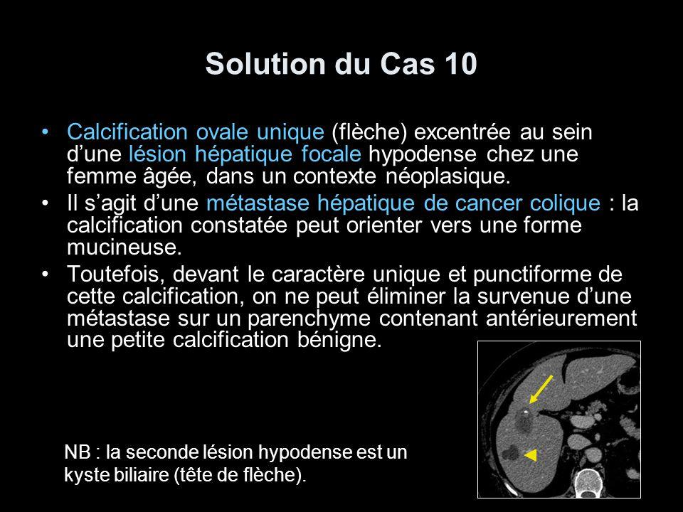 Solution du Cas 10