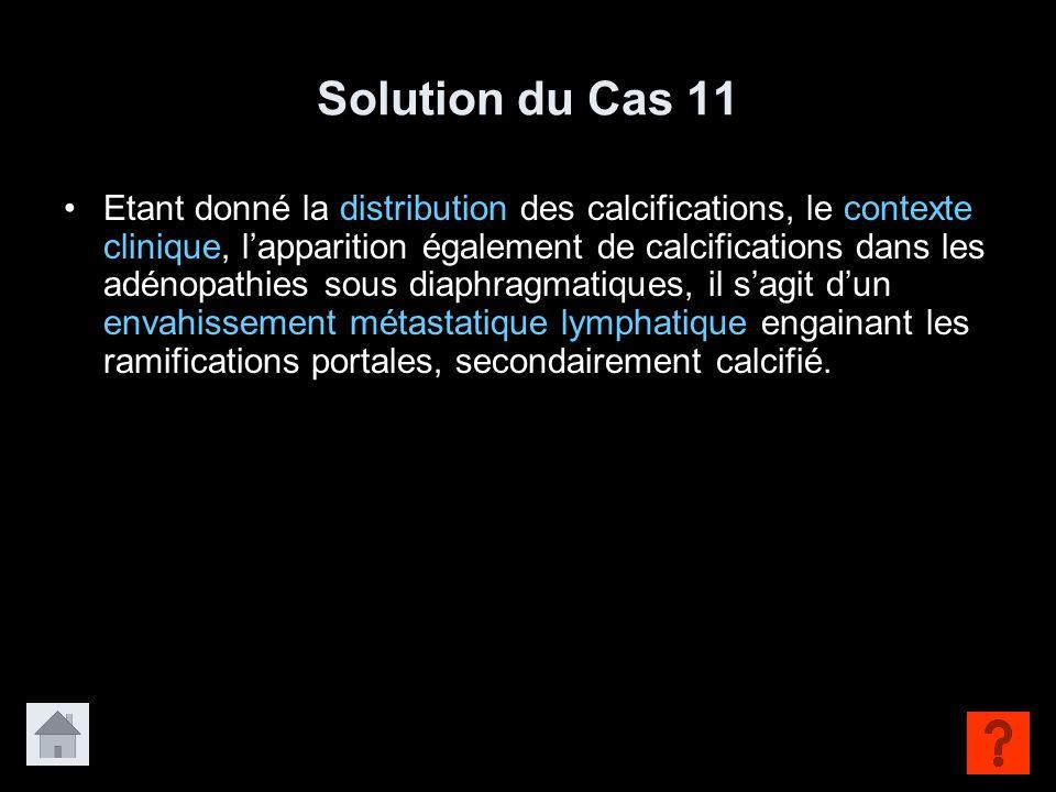 Solution du Cas 11