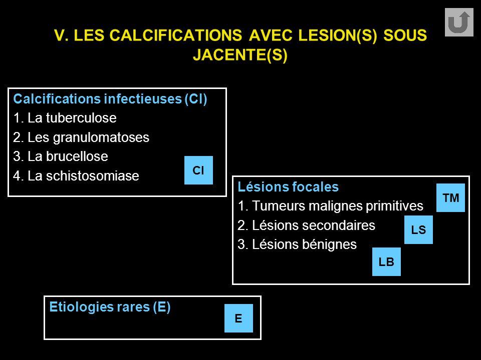 V. LES CALCIFICATIONS AVEC LESION(S) SOUS JACENTE(S)