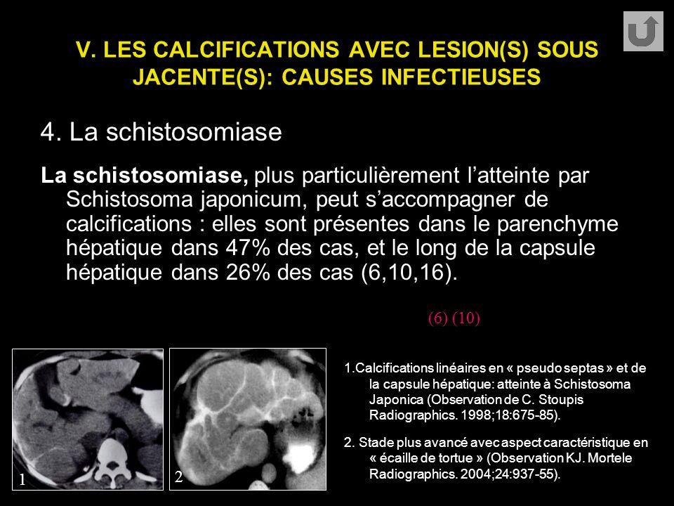 V. LES CALCIFICATIONS AVEC LESION(S) SOUS JACENTE(S): CAUSES INFECTIEUSES