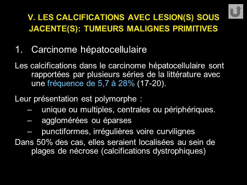 Carcinome hépatocellulaire