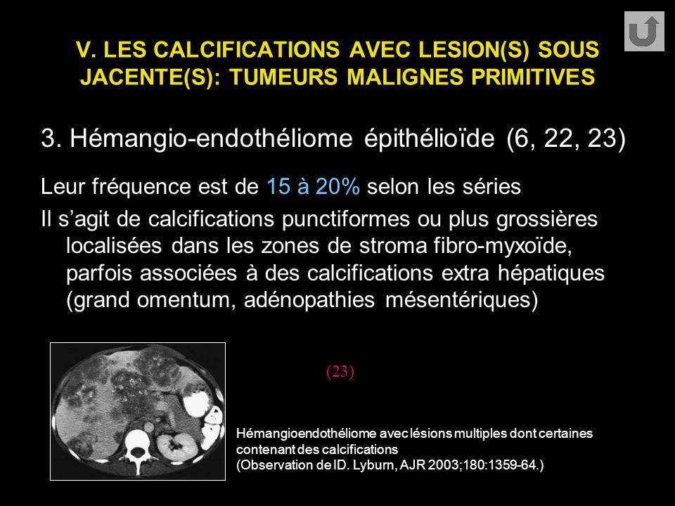 3. Hémangio-endothéliome épithélioïde (6, 22, 23)