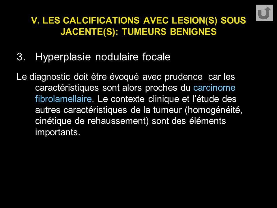 V. LES CALCIFICATIONS AVEC LESION(S) SOUS JACENTE(S): TUMEURS BENIGNES