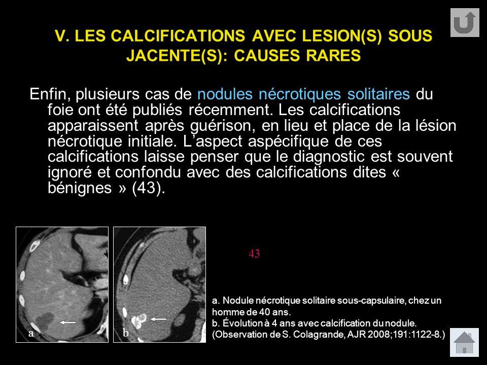 V. LES CALCIFICATIONS AVEC LESION(S) SOUS JACENTE(S): CAUSES RARES