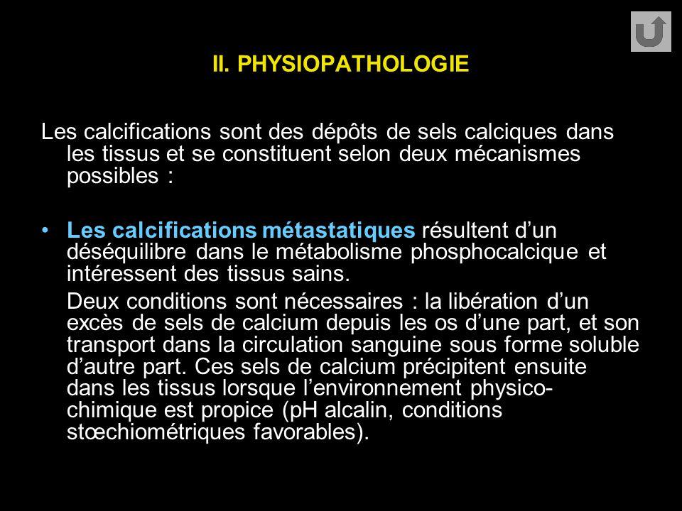 II. PHYSIOPATHOLOGIE Les calcifications sont des dépôts de sels calciques dans les tissus et se constituent selon deux mécanismes possibles :