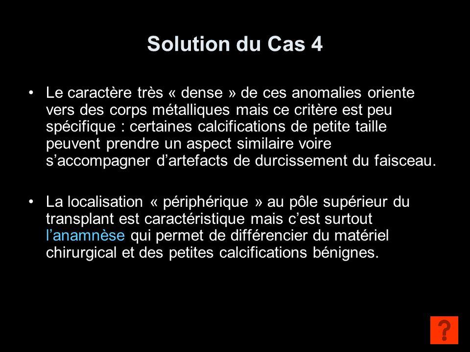 Solution du Cas 4
