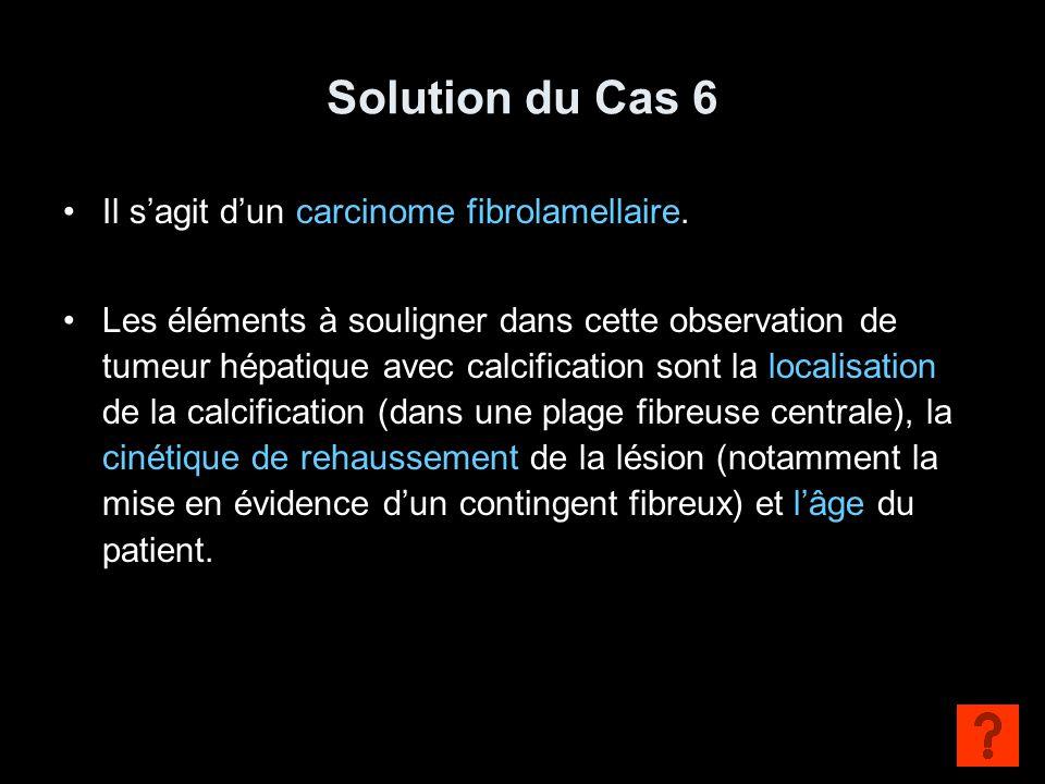 Solution du Cas 6 Il s'agit d'un carcinome fibrolamellaire.