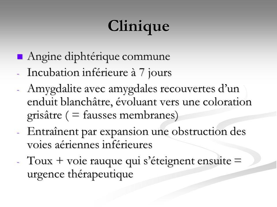 Clinique Angine diphtérique commune Incubation inférieure à 7 jours