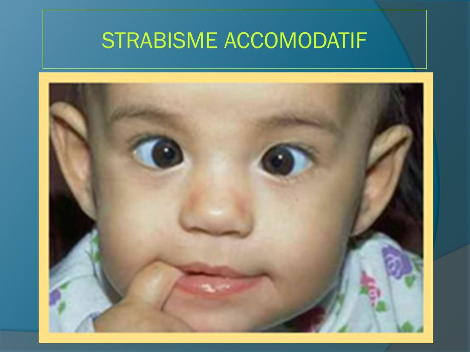 STRABISME ACCOMODATIF