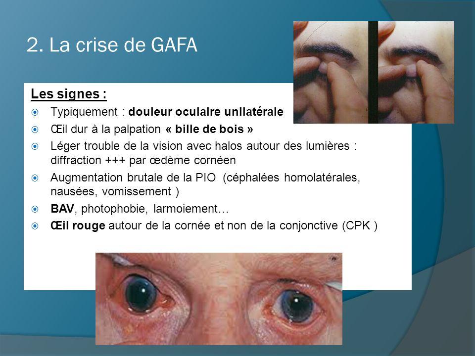 2. La crise de GAFA Les signes :