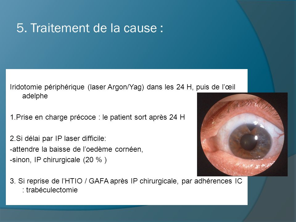 5. Traitement de la cause :