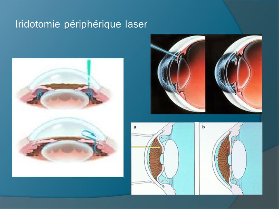Iridotomie périphérique laser