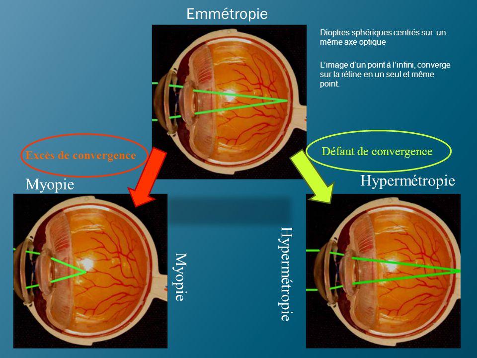 Emmétropie Hypermétropie Myopie Hypermétropie Myopie