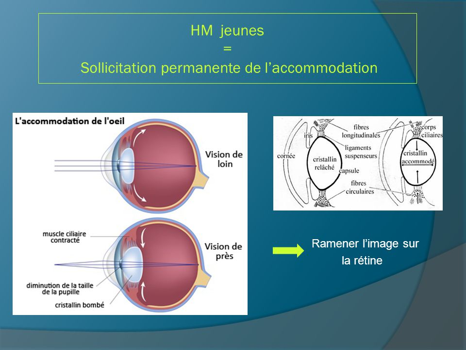 HM jeunes = Sollicitation permanente de l'accommodation