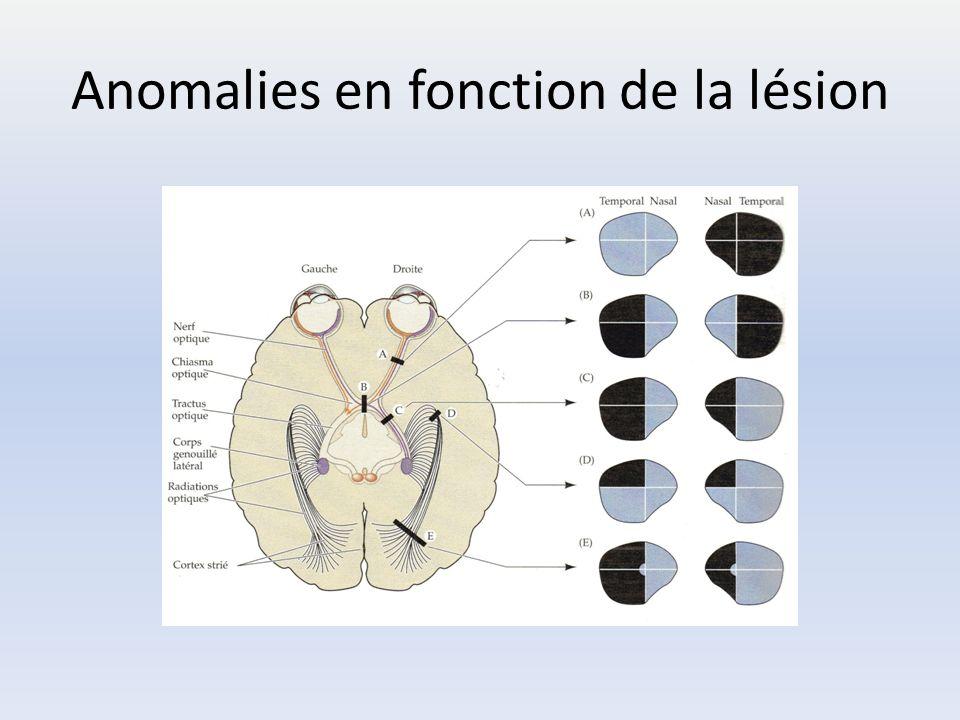 Anomalies en fonction de la lésion