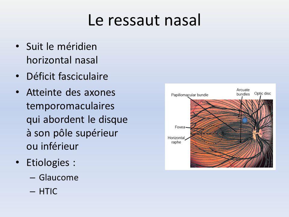 Le ressaut nasal Suit le méridien horizontal nasal