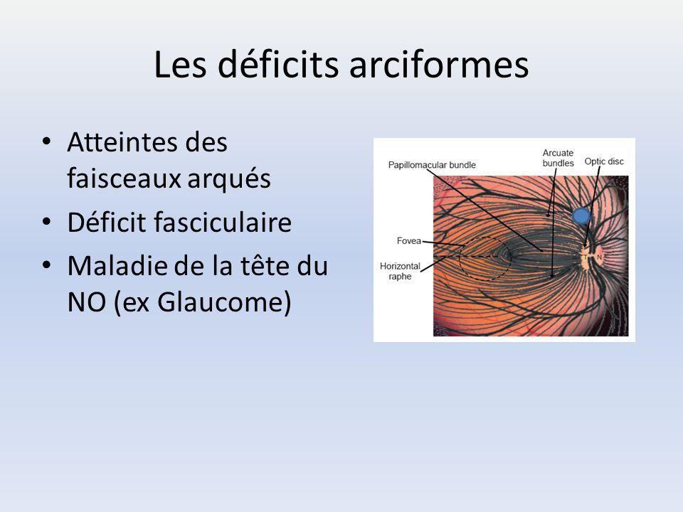 Les déficits arciformes