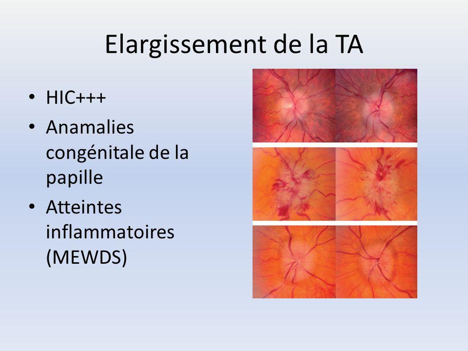 Elargissement de la TA HIC+++ Anamalies congénitale de la papille