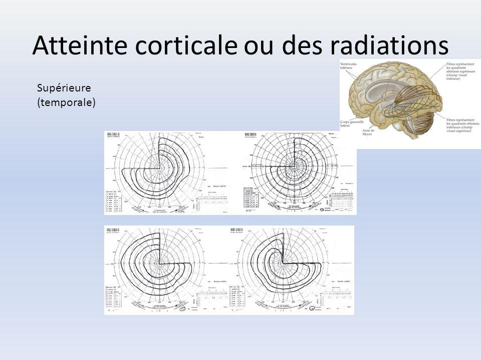 Atteinte corticale ou des radiations