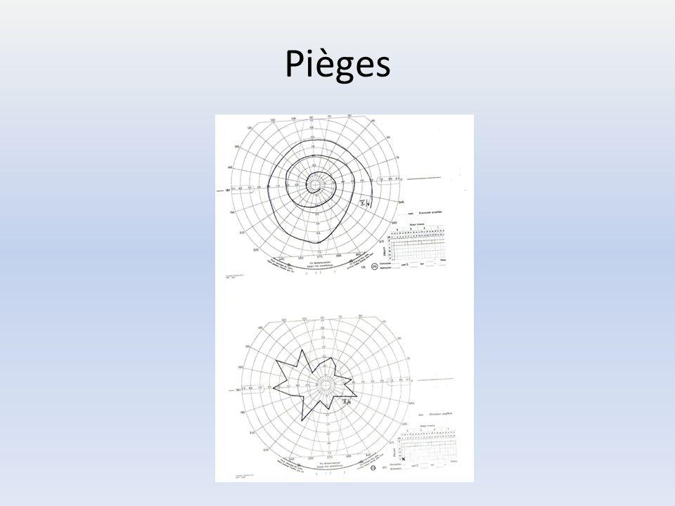 Pièges