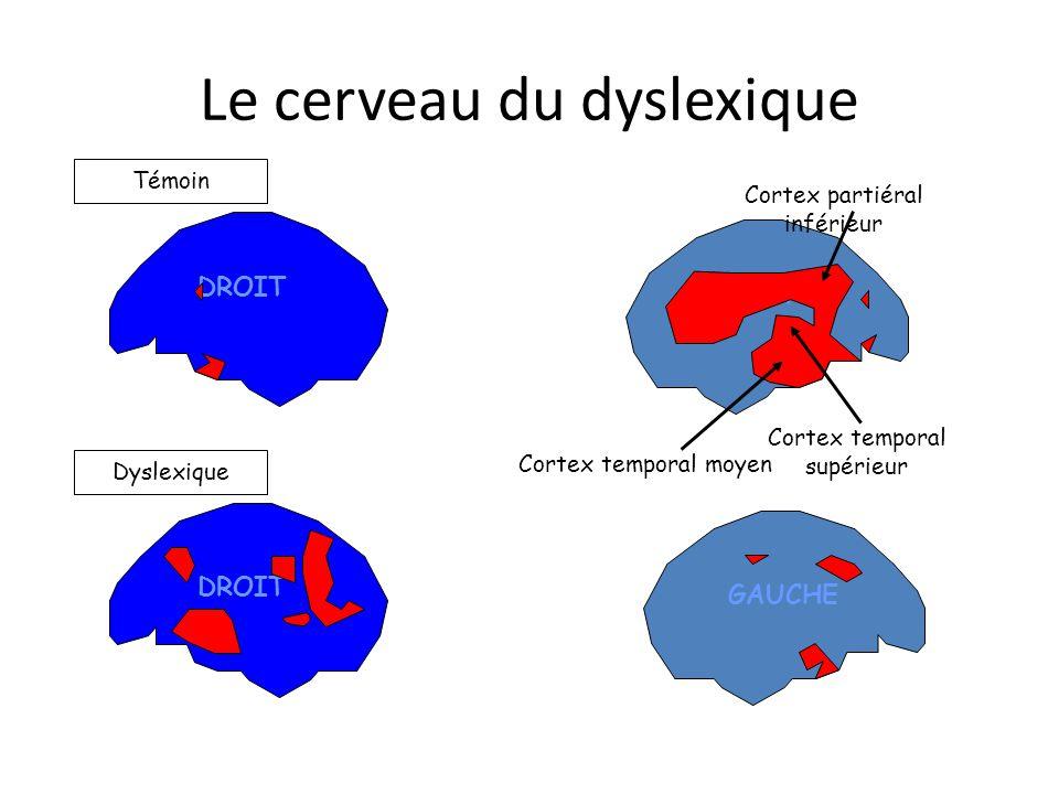 Le cerveau du dyslexique