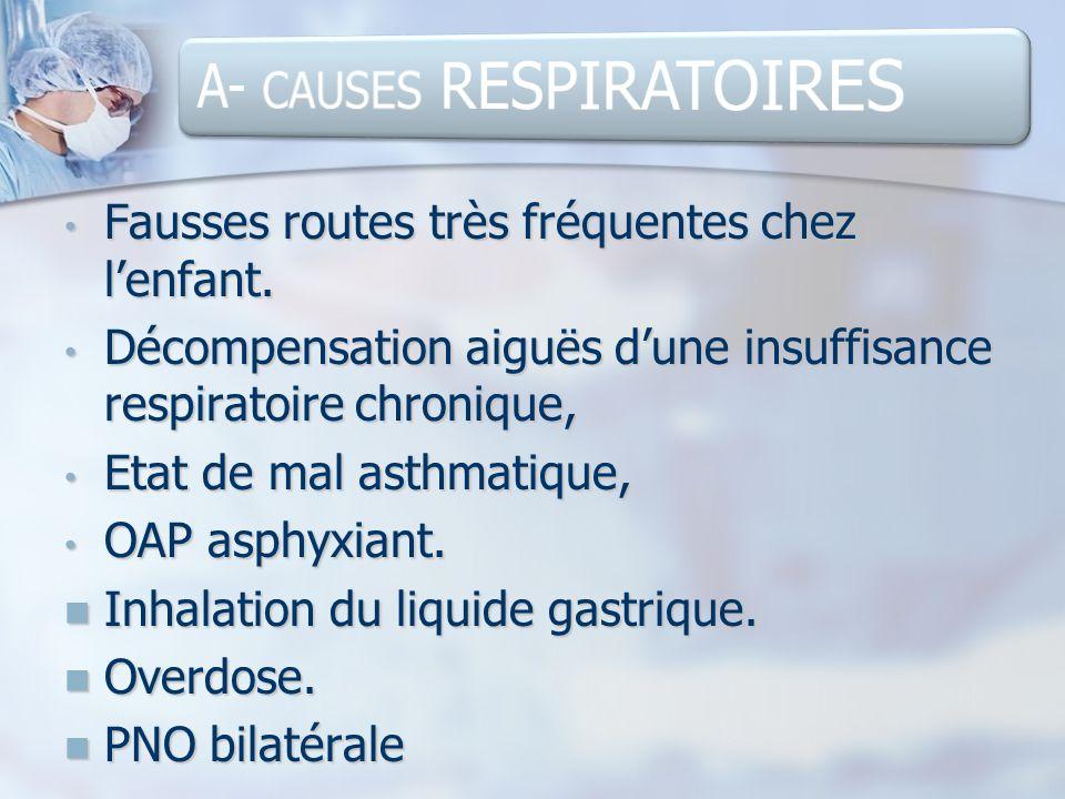 A- CAUSES RESPIRATOIRES