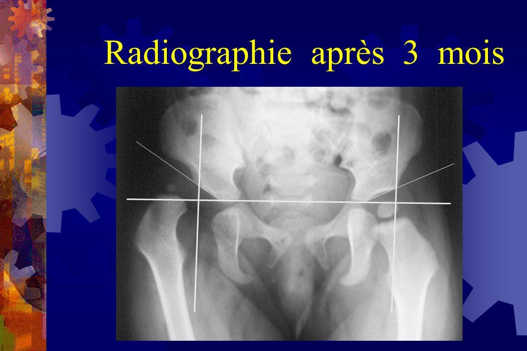 Radiographie après 3 mois