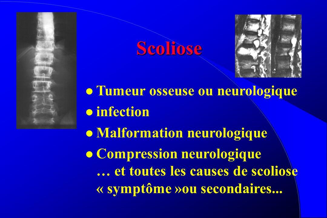 Scoliose Tumeur osseuse ou neurologique infection