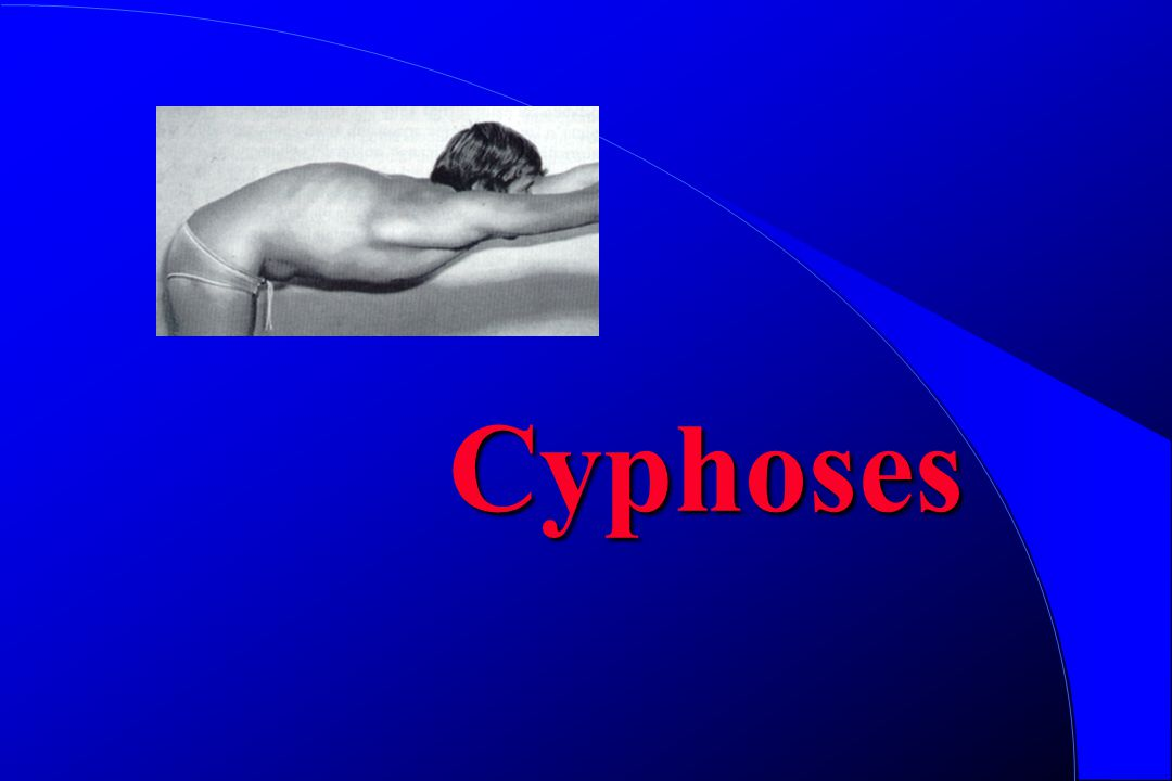 Cyphoses
