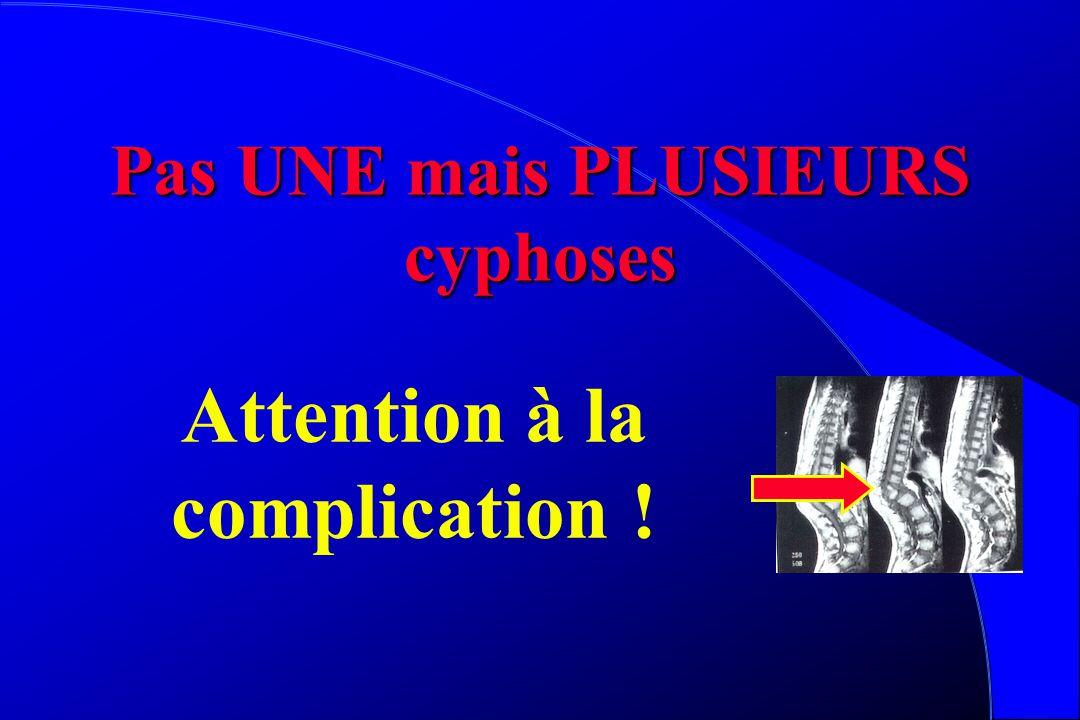Pas UNE mais PLUSIEURS cyphoses Attention à la complication !