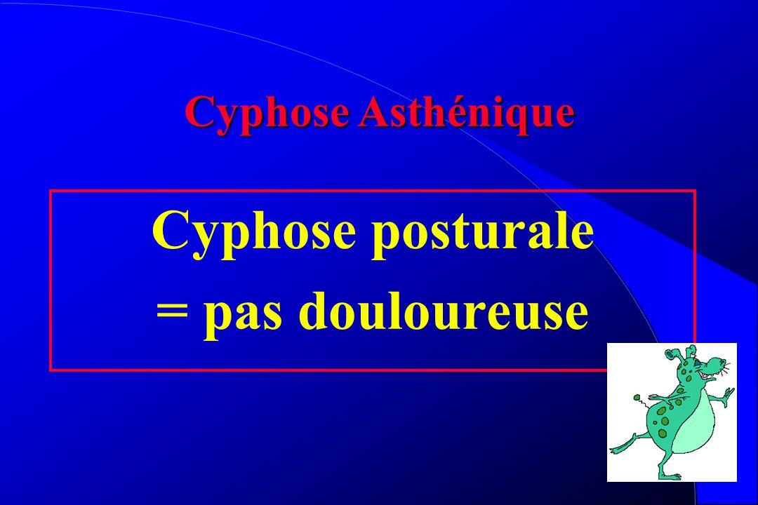 Cyphose posturale = pas douloureuse