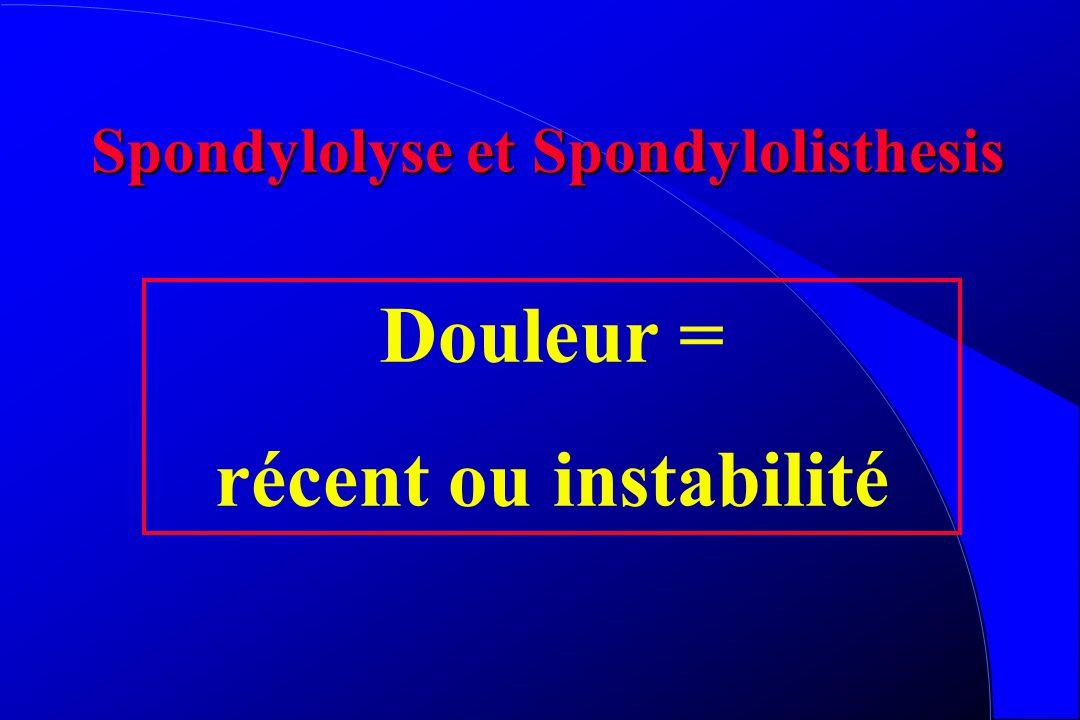 Spondylolyse et Spondylolisthesis