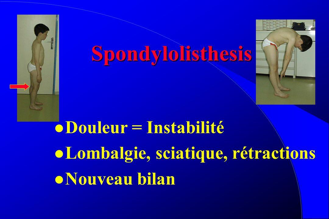 Spondylolisthesis Douleur = Instabilité
