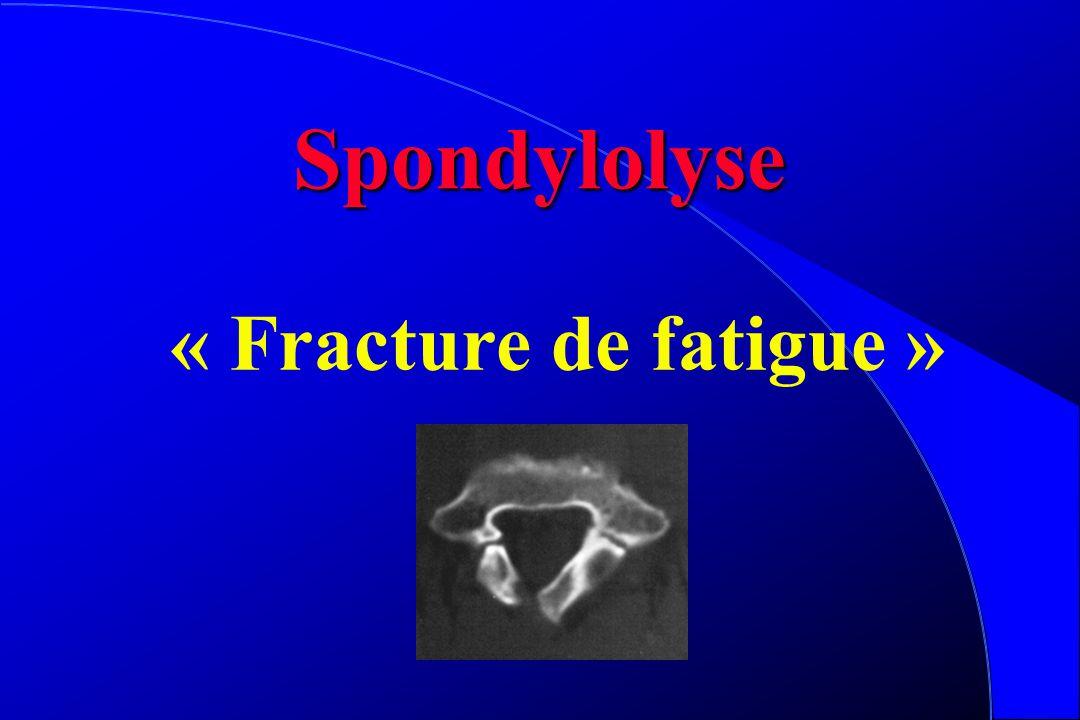 Spondylolyse « Fracture de fatigue »