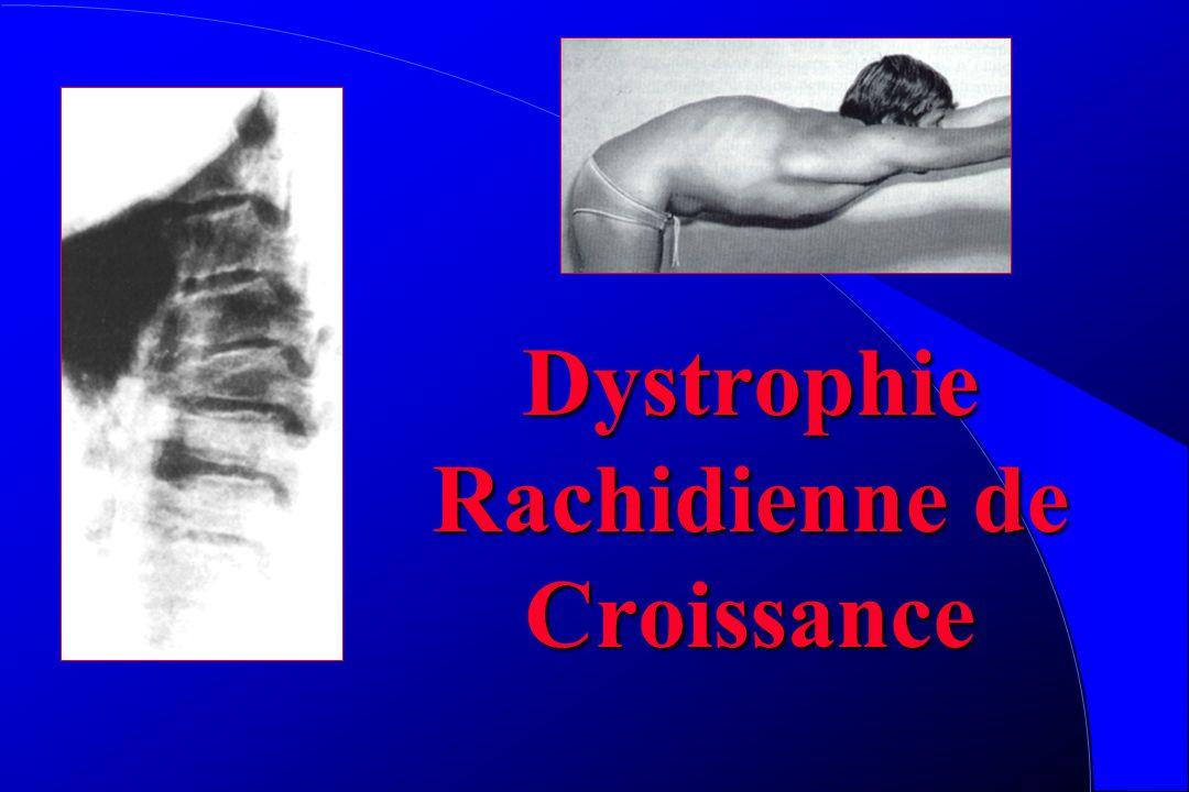 Dystrophie Rachidienne de Croissance