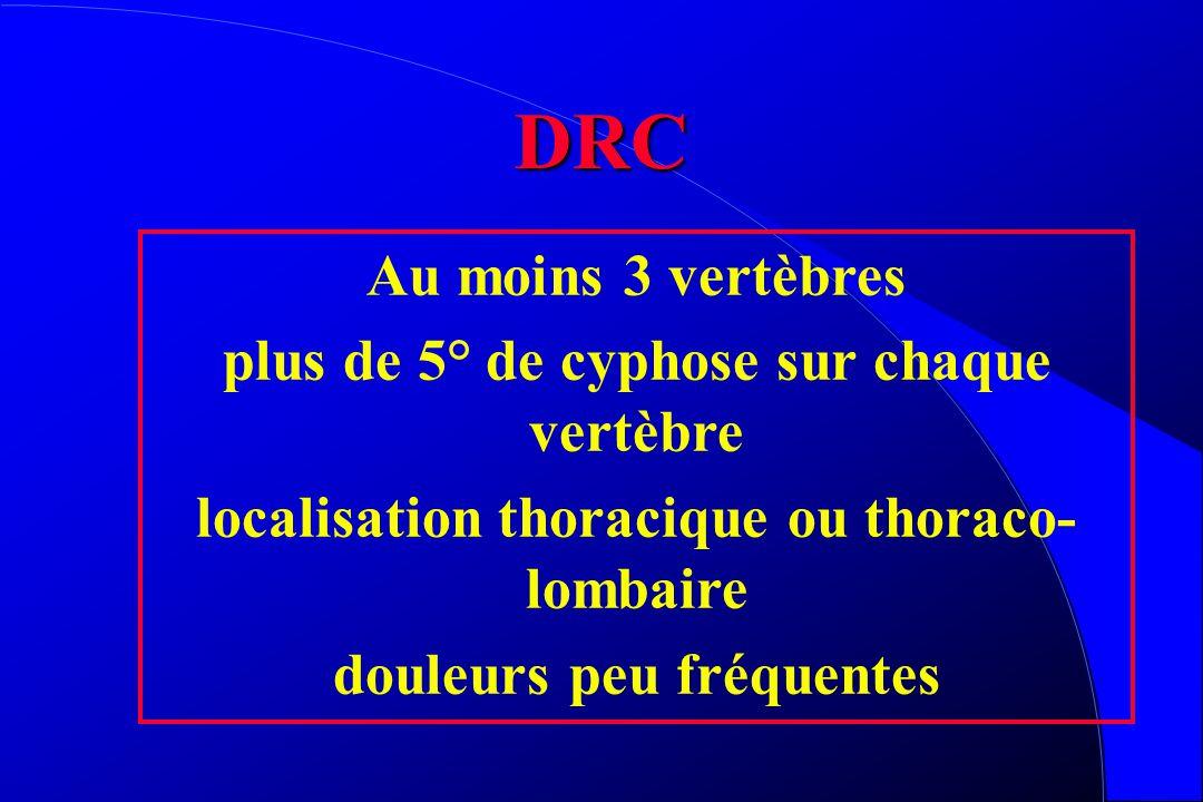 DRC Au moins 3 vertèbres plus de 5° de cyphose sur chaque vertèbre