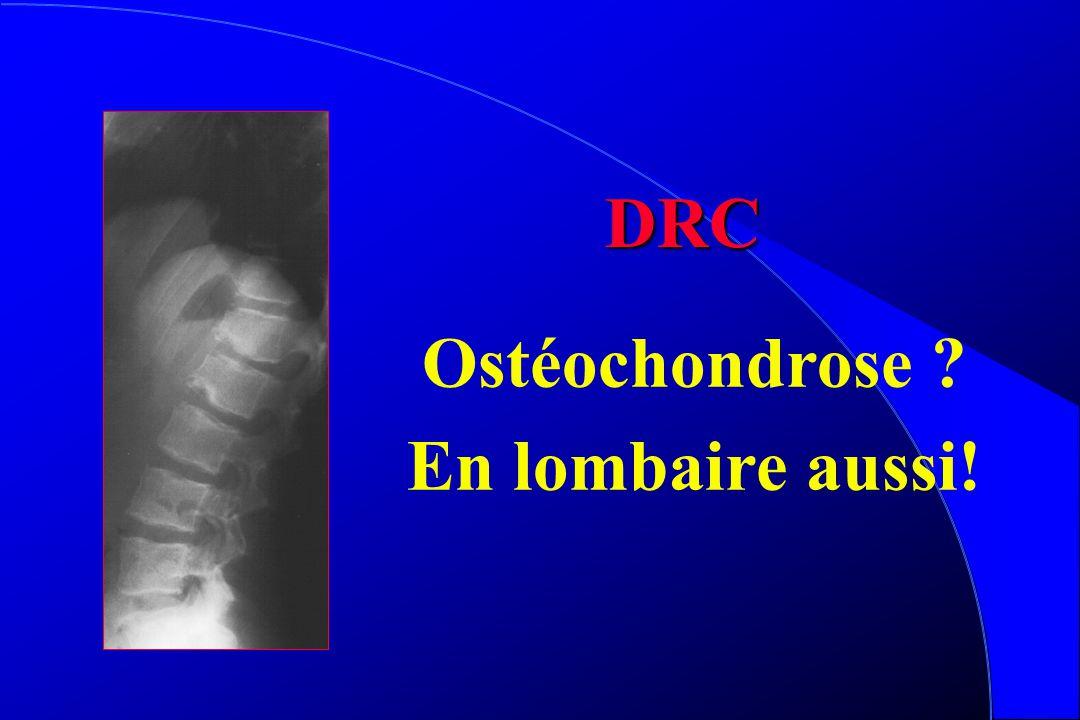 DRC Ostéochondrose En lombaire aussi!