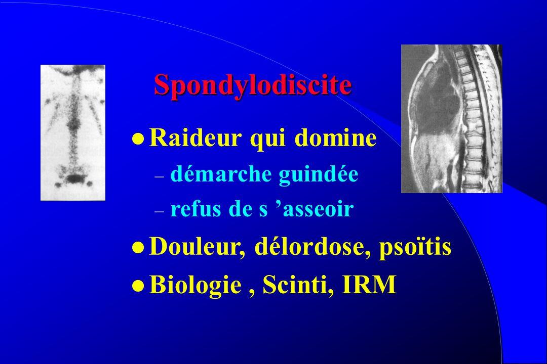 Spondylodiscite Raideur qui domine Douleur, délordose, psoïtis
