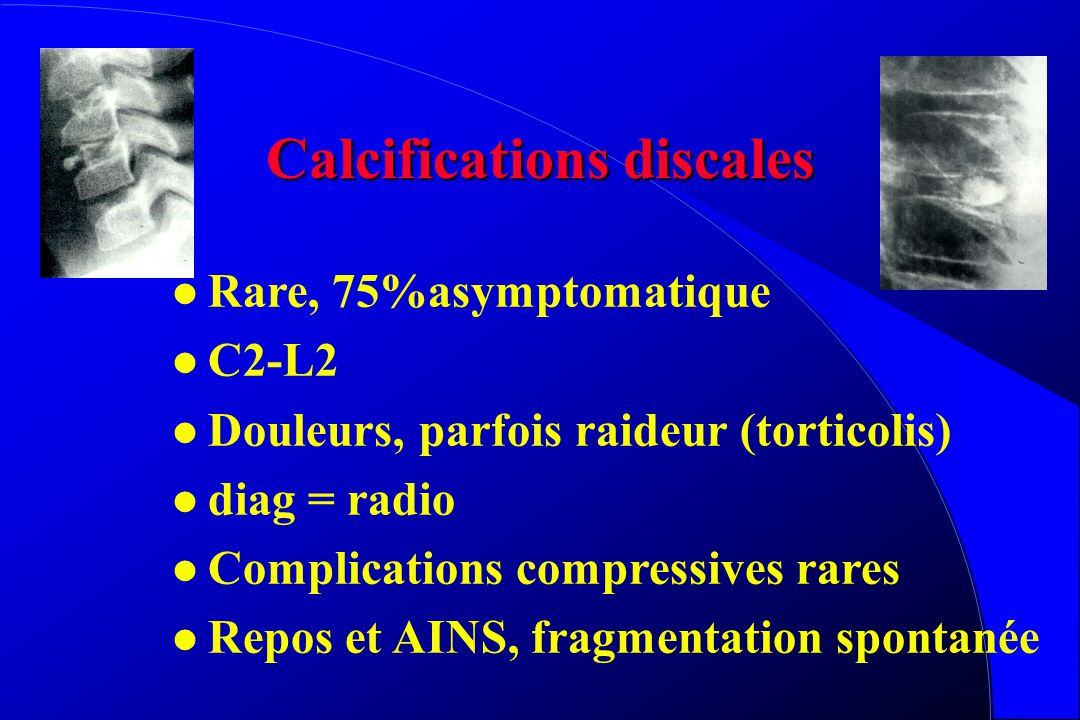 Calcifications discales